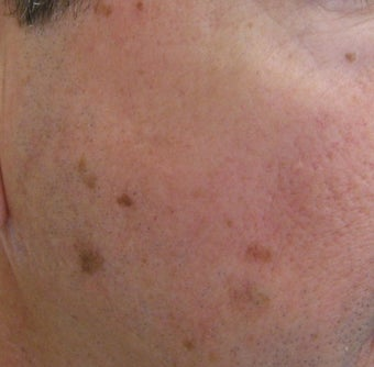 58 year old Male with undesired Pigmentation on face