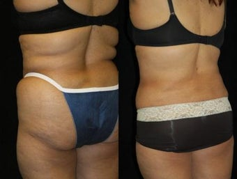 63 year old woman SmartLipo Waist and Flanks