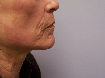 Ablative Laser Resurfacing