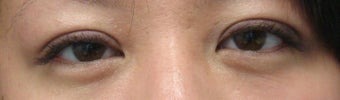 Bilateral Asian Eyelid Surgery
