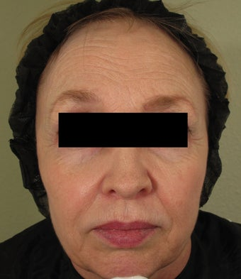 Facial rejuvenation with Sculptra, Dermapen, and Botox