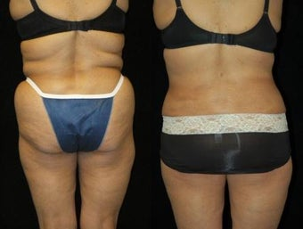 66 Year-Old Woman Treated for Bulky Fat of Bra Rolls, Flanks, and Waist