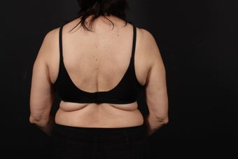 56 year old female, bra line back lift