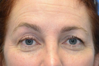 Browlift w hairline lowering, Upper eye blepharoplasty, Lower eyelid skin pinch, Fat transfer