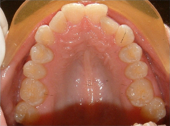 Invisalign treatment for crowded teeth with a cross-bite
