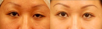 Asian Eyelid Surgery for Ptosis