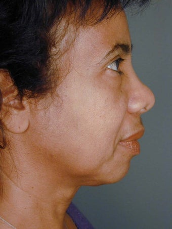 Female Chin Implant