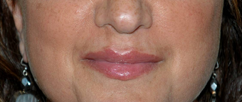 Non-surgical Lip Augmentation for Improved Contour and Definition