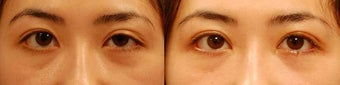 Droopy Eyelid or Ptosis Repair