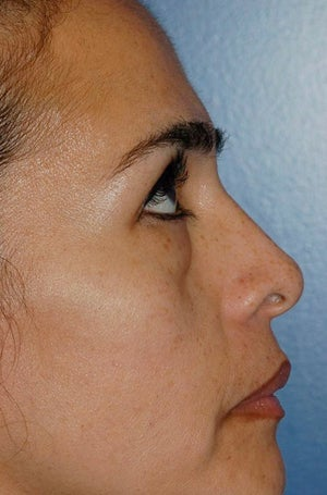 Lower lid blepharoplasty with fat grafting