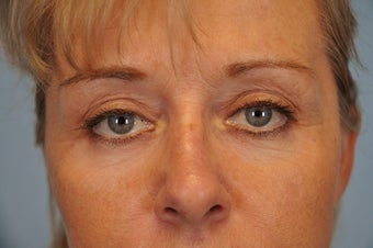 Hetter Peel on lower eyelids.