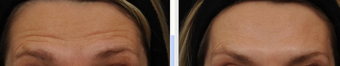 Before and After BOTOX® Cosmetic  - frown lines, forehead lines, crow's feet