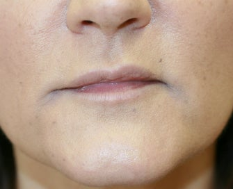 Juvederm into downturned corners of mouth