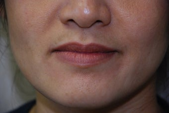 Juvederm to Lips and Smile Lines