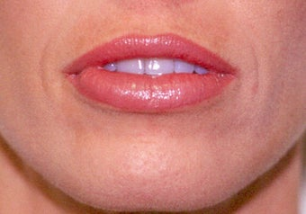 Before and After Upper & Lower Lip Lift