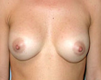 Breast Augmentation Corrects Saggy Breasts