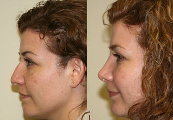 Nose job or Rhinoplasty