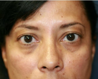 Radiesse to fill lower eyelid hollows