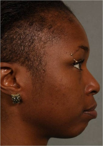 31 year old african american female with weak chin would like non surgical treatment