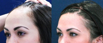 Forehead Reduction Surgery or Hairline Lowering Surgery