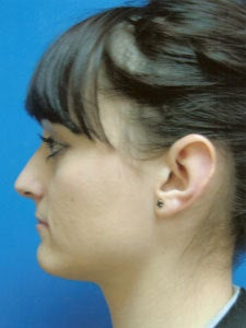 Otoplasty Ear Surgery - Female
