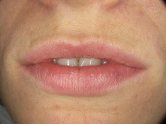 Teeth and Lips for Smile Makeover