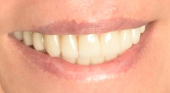 Full Mouth Reconstruction with Porcelain Crowns and Veneers