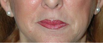 Lip Augmentation with Lip Lift for Natural, Refreshed Look