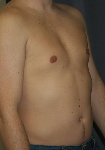 Liposuction of the male chest and abdomen