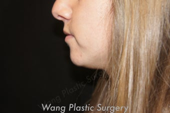 Chin Augmentation with Radiesse filler