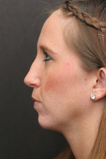 30 Year Old Young Lady Treated with Botox for the Creases of her chin