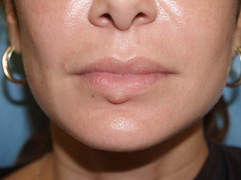 Extensive repair of scarring and deformity as a result of silicone and BioPolymer lip injections