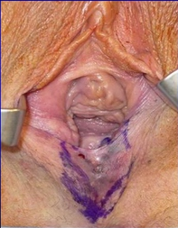 Vaginoplasty Before and After in the OR