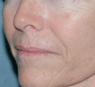Laser Resurfacing for Wrinkles
