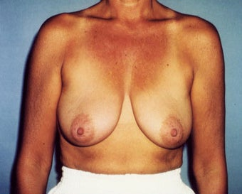 Breast Lift Increases Areolar Height for 45 Year Old Woman