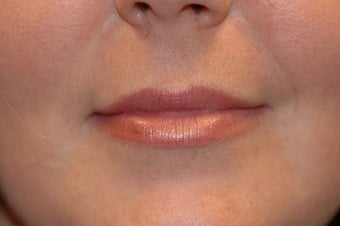 Juvederm in Upper Lip