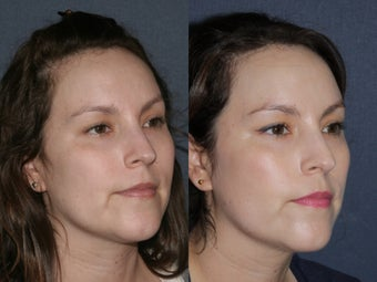 Before & After Laser Resurfacing