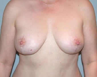 Breast Lift Restores Pre-Breast Feeding Shape