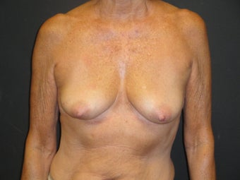 Breast reconstruction - tissue expanders