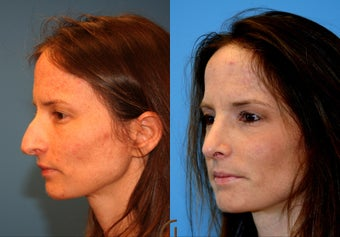 Rhinoplasty also known as nose job
