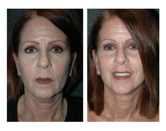 Lower Facelift and Necklift for Dramatic, Natural-Appearing Rejuvenation
