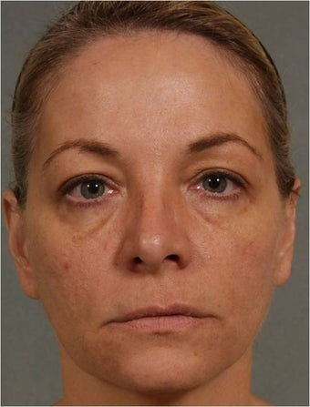 47 year old female treated for loss of volume under eyes, cheeks, and lips