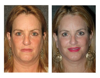 Facelift and Chin Implant for Dramatic Improvement in Jawline and Neck