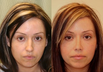 Natural Rhinoplasty