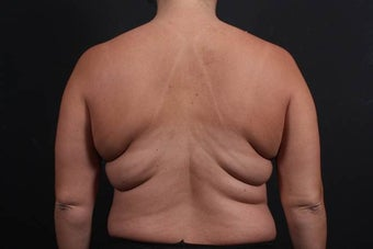 This 39 year old female underwent the Bra Line Back Lift procedure