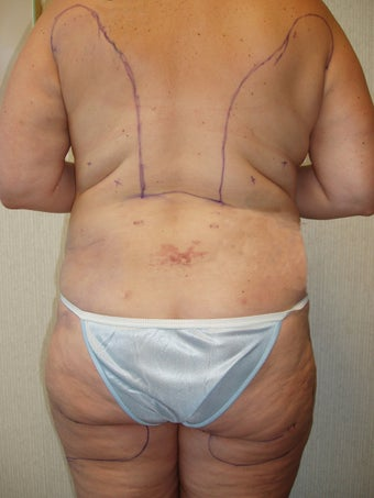 Liposuction of Buttocks and Hips