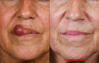 65-year-old woman with large lip lesion treated by surgical excision and repair