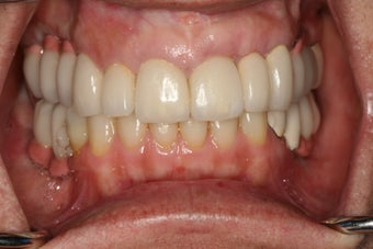 Full mouth reconstruction, bad dental implants