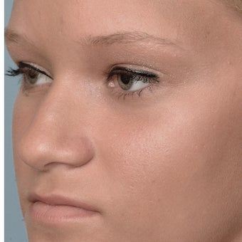 18 Year-Old Female Treated For Midface Deficiency