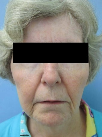 Wrinkle treatment on woman's lip, jaw and cheek areas